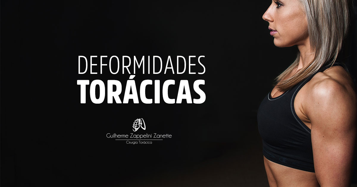 DEFORMIDADES-TORÁCICAS